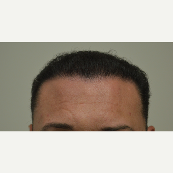 35-44 year old man treated with FUE Hair Transplant after 3667216