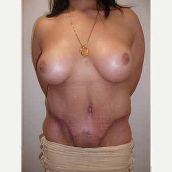 25-34 year old woman treated with Breast Augmentation and tummy tuck after 2980168