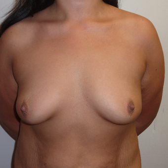 25-34 year old woman treated with Breast Augmentation and tummy tuck before 2980168