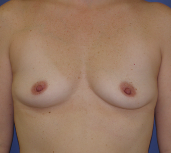 25-34 year old woman treated with Breast Augmentation before 3286990