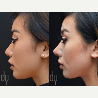 Asian Rhinoplasty with Rib cartilage before 3739410