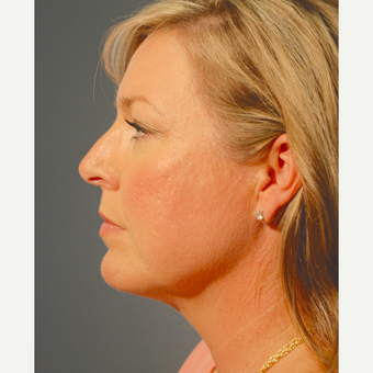 35-44 year old woman treated with Kybella after 3376456