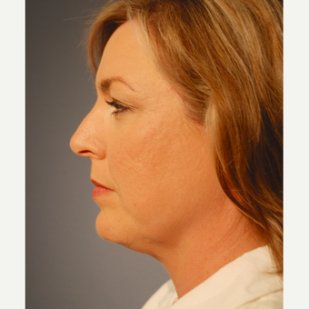 35-44 year old woman treated with Kybella before 3376456