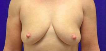 45-54 year old woman treated with Vaser Liposuction