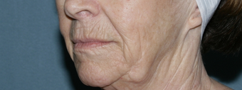 Face and neck Fraxel repair with C02/Erbium lasers for upper lip wrinkles before 104644