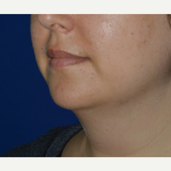 25-34 year old woman treated with Chin Liposuction before 3641450