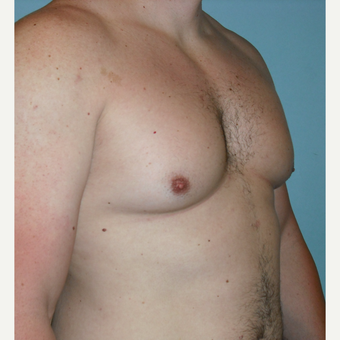 25-34 year old man treated with Male Breast Reduction before 3725251