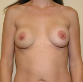 25-34 year old woman treated with Breast Implant Removal before 1606659