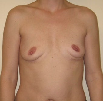 25-34 year old woman treated with Breast Implant Removal after 1606659