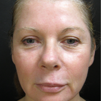 Facial Resurfacing