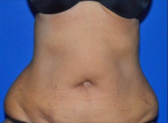 55-64 year old woman treated with SculpSure to Abdominal area after 2859937