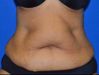 55-64 year old woman treated with SculpSure to Abdominal area before 2859937