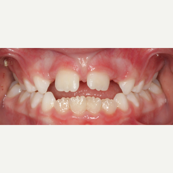 17 or under year old woman treated with Braces before 3188465