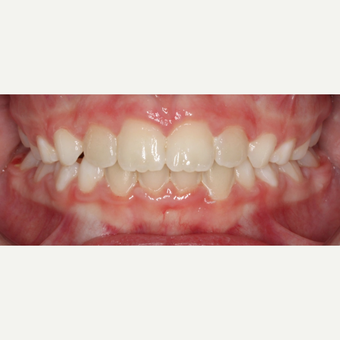 17 or under year old woman treated with Braces after 3188465