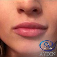 18-24 year old woman treated with Lip Augmentation after 3481772