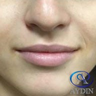 18-24 year old woman treated with Lip Augmentation before 3481772