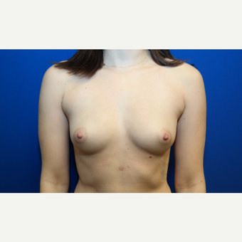 25-34 year old woman treated with Breast Augmentation before 3099101