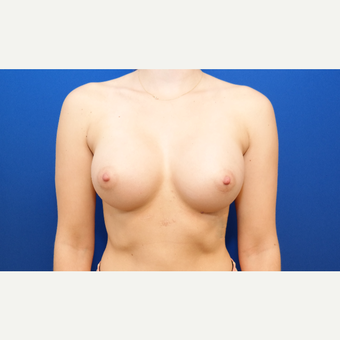 25-34 year old woman treated with Breast Augmentation after 3099101