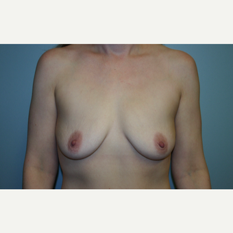 35-44 year old woman treated with Breast Augmentation before 3564694