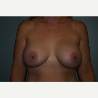 35-44 year old woman treated with Breast Augmentation after 3564694