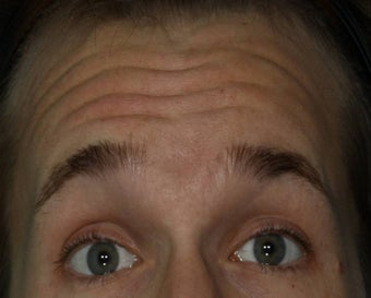 Male treated for Forehead Wrinkles before 772008