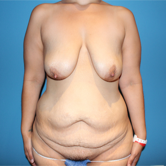 35-44 year old woman treated with Mommy Makeover before 3148773