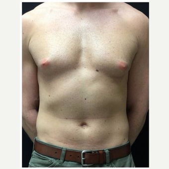 25-34 year old man treated with Male Breast Reduction before 3185980