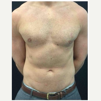 25-34 year old man treated with Male Breast Reduction after 3185980