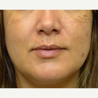 35-44 year old woman treated with Injectable Fillers before 3421872