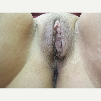 35-44 year old woman treated with Labiaplasty after 3542786