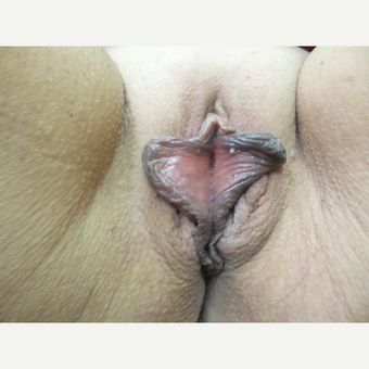 35-44 year old woman treated with Labiaplasty before 3542786