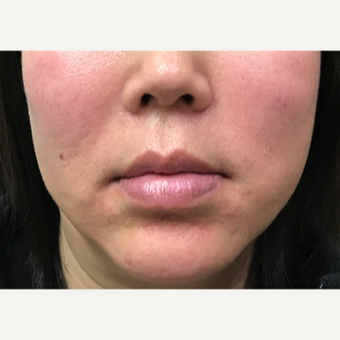 46 year old woman treated with Restylane-L injected into the marionette lines after 3656711