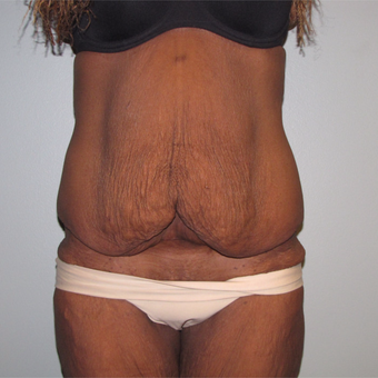 55-64 year old woman treated with Panniculectomy after 3691279