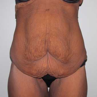 55-64 year old woman treated with Panniculectomy before 3691279