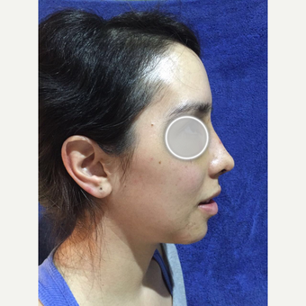 25-34 year old woman treated with Rhinoplasty after 3776767