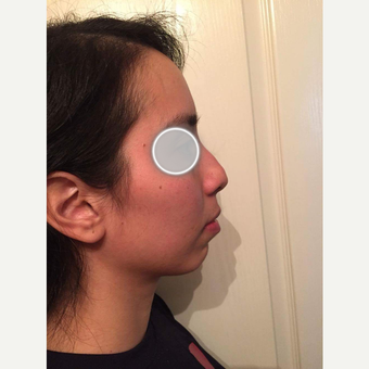 25-34 year old woman treated with Rhinoplasty before 3776767