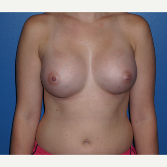 25-34 year old woman treated with Breast Augmentation after 3326126