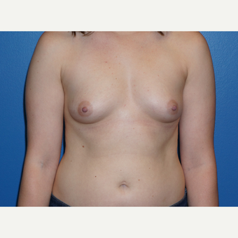 25-34 year old woman treated with Breast Augmentation before 3326126