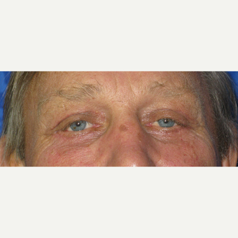 55-64 year old man treated with Eyelid Surgery after 3305773