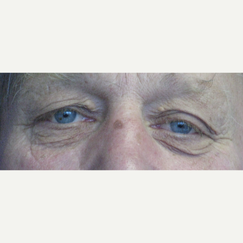 55-64 year old man treated with Eyelid Surgery before 3305773