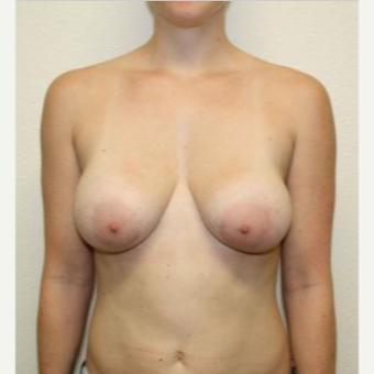 35-44 year old woman treated with Breast Implant Removal and Breast Lift before 2835391