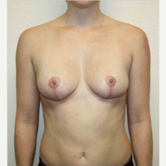 35-44 year old woman treated with Breast Implant Removal and Breast Lift after 2835391