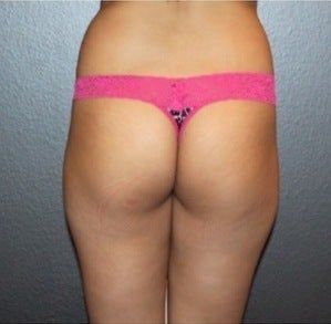 Butt Augmentation before 1864244