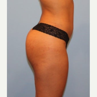 Butt Augmentation 1864244