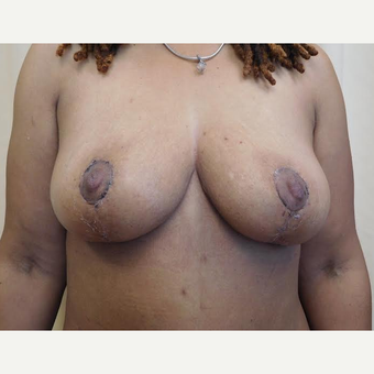 45-54 year old woman treated with Breast Lift after 2999145