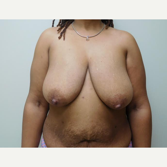 45-54 year old woman treated with Breast Lift before 2999145