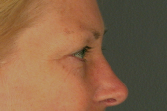 Eyelid Surgery before 310161