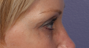 Eyelid Surgery after 310161