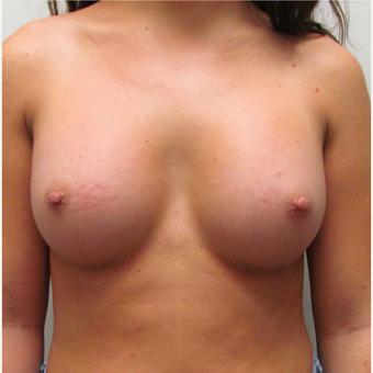 Gummy Bear Breast Augmentation for this 19 Year Old Woman after 3791785