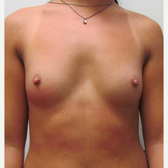 Gummy Bear Breast Augmentation for this 19 Year Old Woman before 3791785